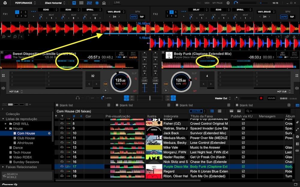 Rekordbox 6.0.1 mostra onde o vocal está na música.